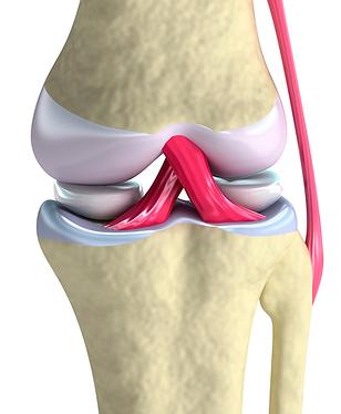 lesion-ligamento-cruzado (1).png