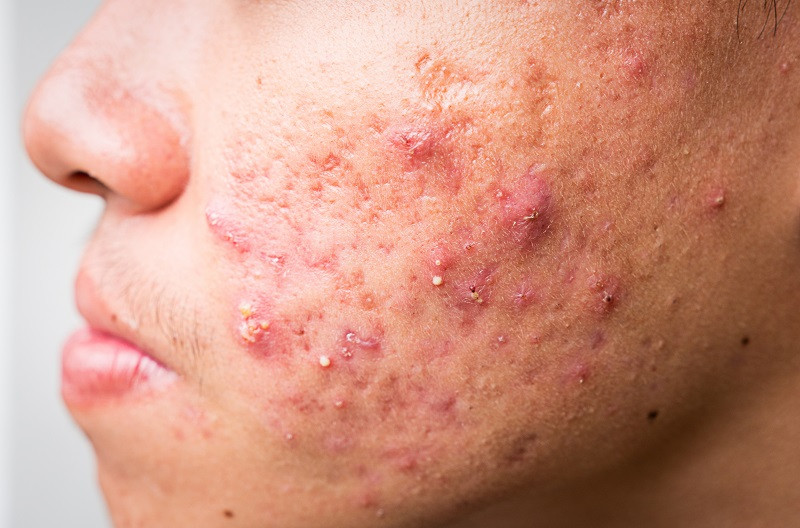 Acne caused by sugar