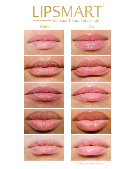 LIPSMART Before and After Chart.jpg