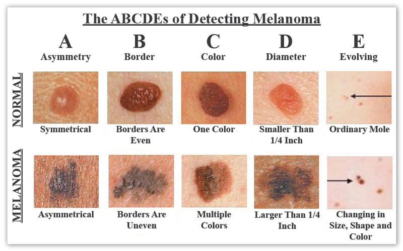 Melanoma Detection