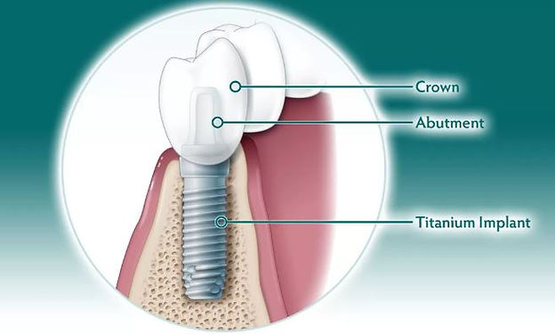 implants 12.JPG