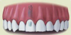 Implants 13.JPG