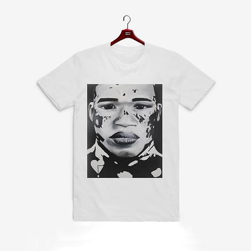 Vitiligo Prince-T