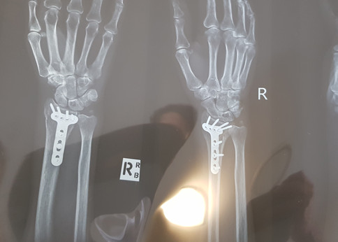 wrist fracture.jpg