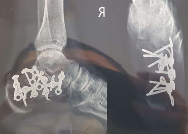 ankle fracture.jpg