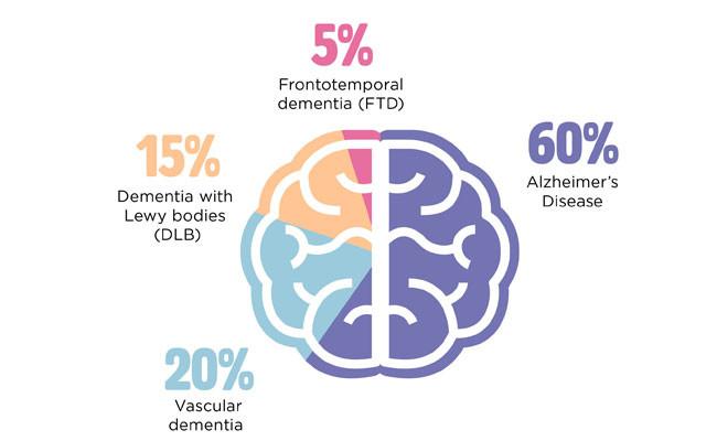 chart of common dementia statistics