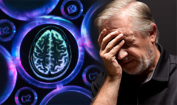 The brain with Alzheimer's diseases