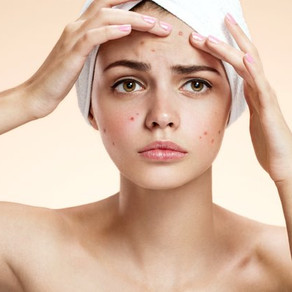 Why Focusing on Wound Healing is Key to Treating Acne