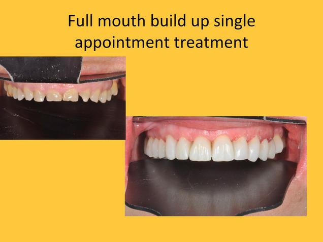 full mouth dental build up