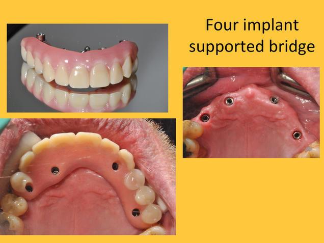 implant supported dental bridge