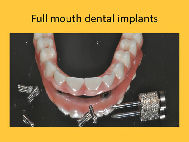 full set of upper teeth supported by dental implants