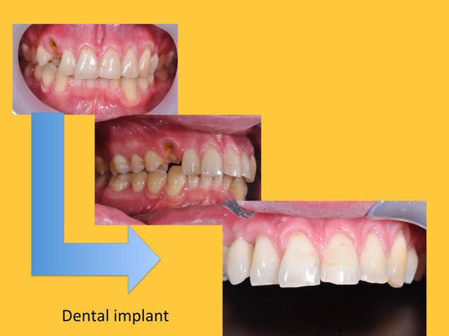 single tooth replaced by dental implant