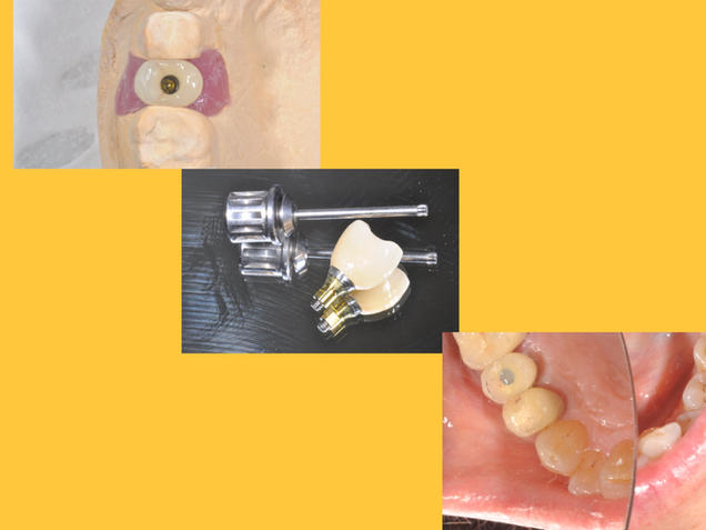 single crown supported dental implant