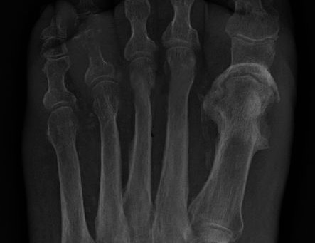 Why your treatment of osteomyelitis is wrong