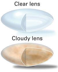 Cataract---Clear-and-Cloudy-Lenses.jpg
