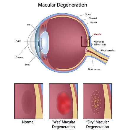 macular-degeneration.jpeg