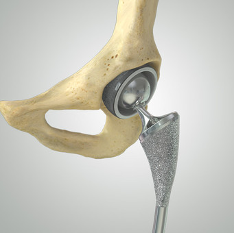 Primary & Revision Hip Replacement