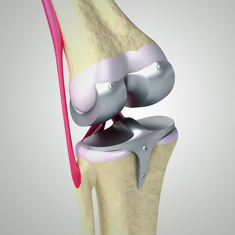 Primary & Revision Knee Replacement