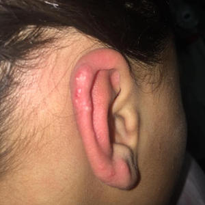 Golpes en la oreja