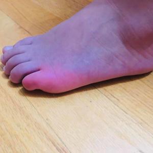 Covid dedo del pie