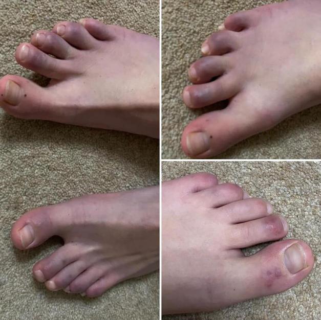 Long Covid Toes