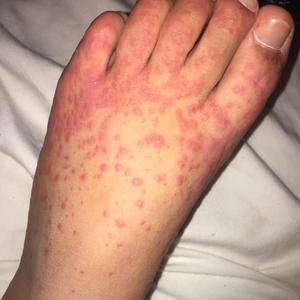 Covid rash on foot