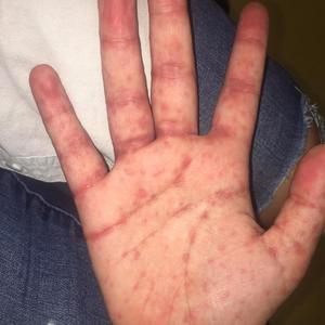Erupción en la palma de la mano