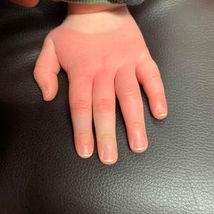 Puffy Hand & Rash