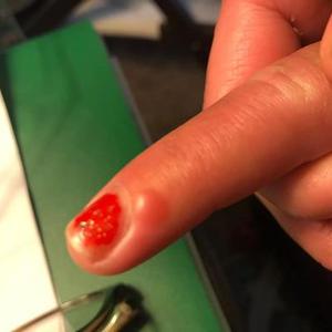 Covid spot on finger