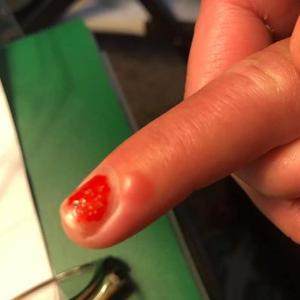 Covid mancha en el dedo