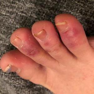 Dedos de covid