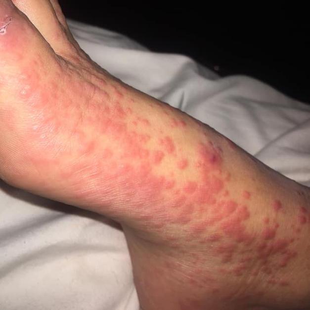 Itchy red Covid rash