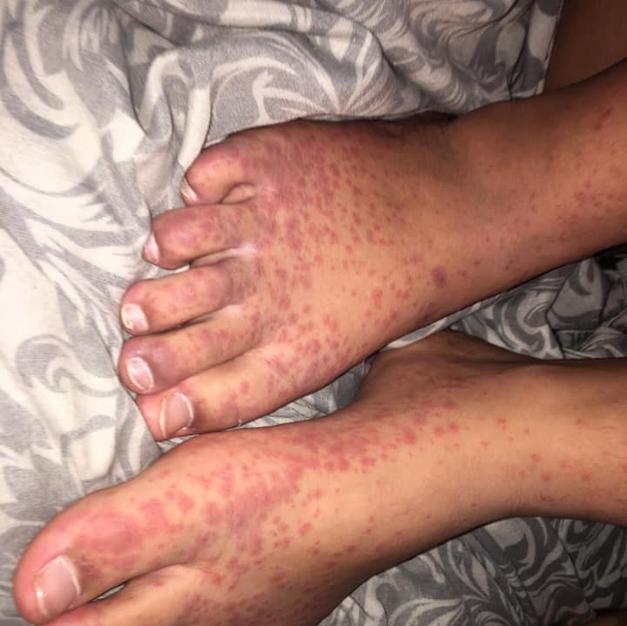 Long covid rash