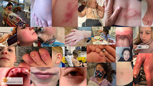 symptoms collage-png.png