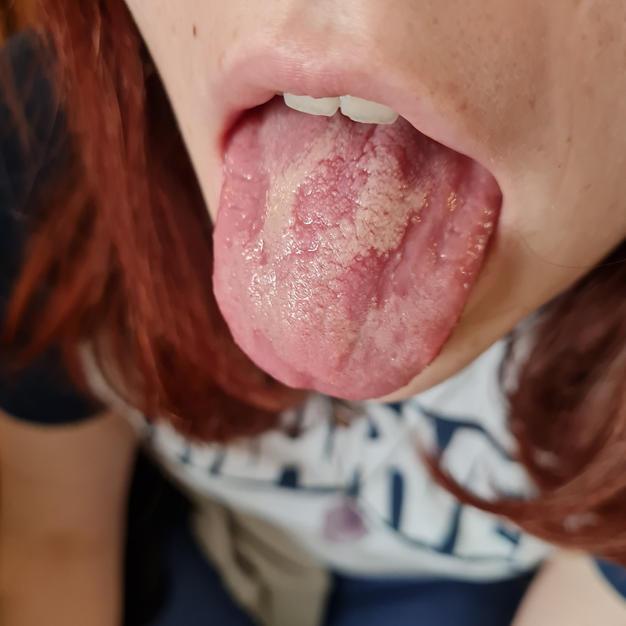 Long Covid Tongue