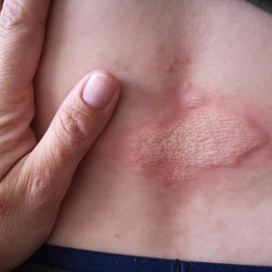 Covid hives