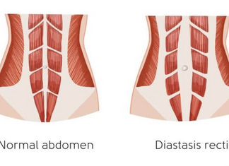 Why is my tummy not back to normal after birth: what you need to know about diastasis recti