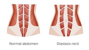 Image showing normal abdomen and Diastasis recti