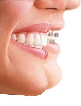 smile braces alignment.jpg