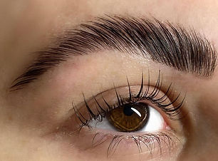 eyebrow lift.jpg