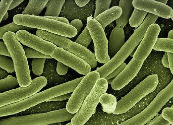 Bacterien Coli-Bild von Gerd Altmann auf