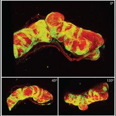 Novel finding on spatial regulation of prostate branching