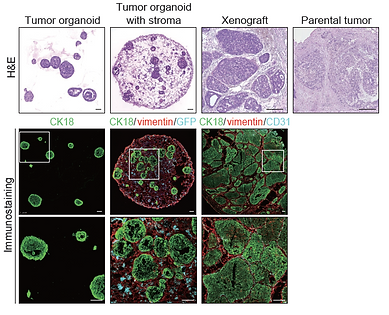 Tumor organoids with stroma.png