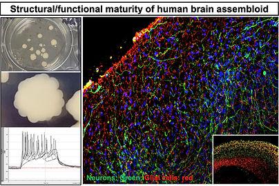 Brain assembloids.jpg