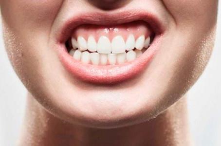 ¿Rechinas tus dientes o los aprietas?