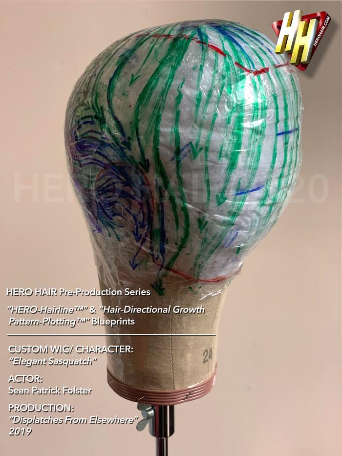 HERO-Hairline & Hair-Directional Growth
