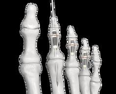The Hammertube™ Hammertoe Implant
