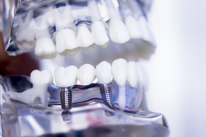 Dentists tooth plastic model with screw