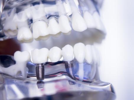 La pose d'implants est-elle douloureuse ?