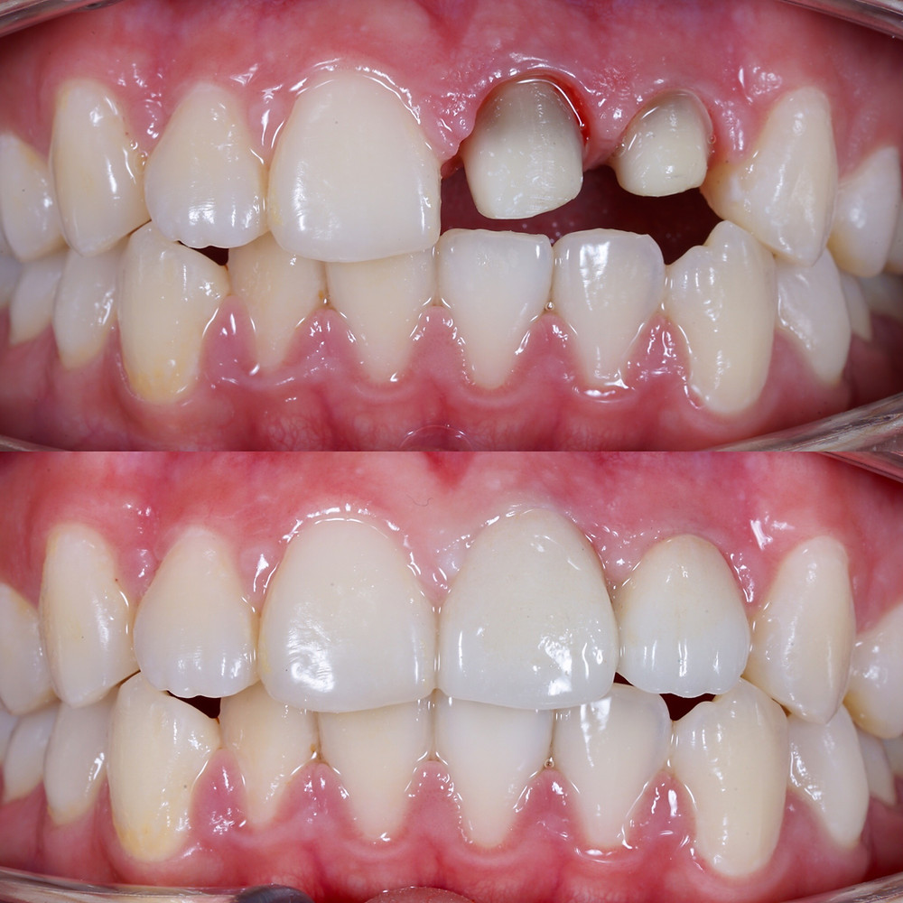 Avant / Après la pose d'une couronne dentaire en céramique sur patient